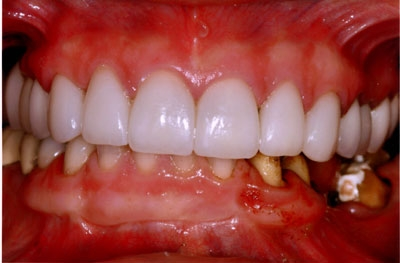patient-33=-8-veneers,-2-Zir