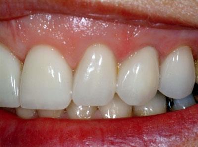 Patient-29-(1)-#-7,-10-emax