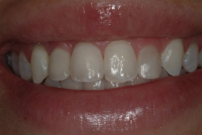 #-7-implant,e-max