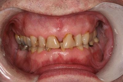 Patient-24-(1)-10-veneers